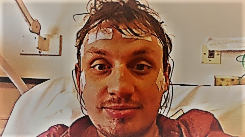 Joe Stevenson EEG Test Picture