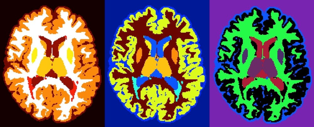 Coloured Picture of Brains